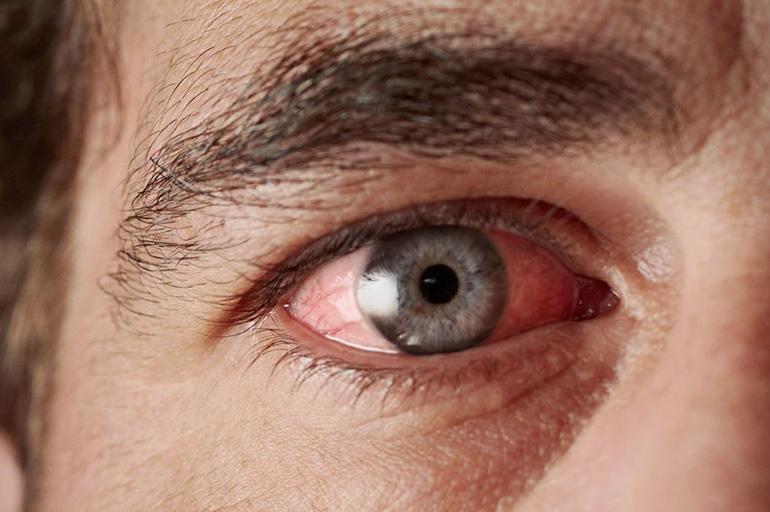 Ожог глаз